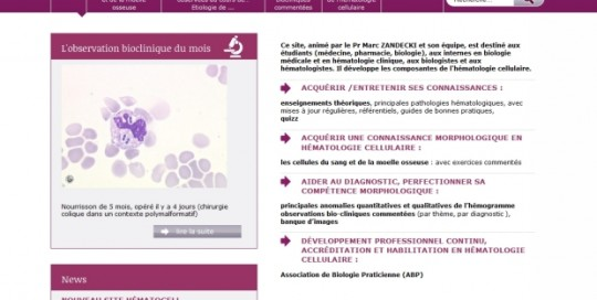 Laboratoire d'Hématologie Cellulaire du CHU d'Angers